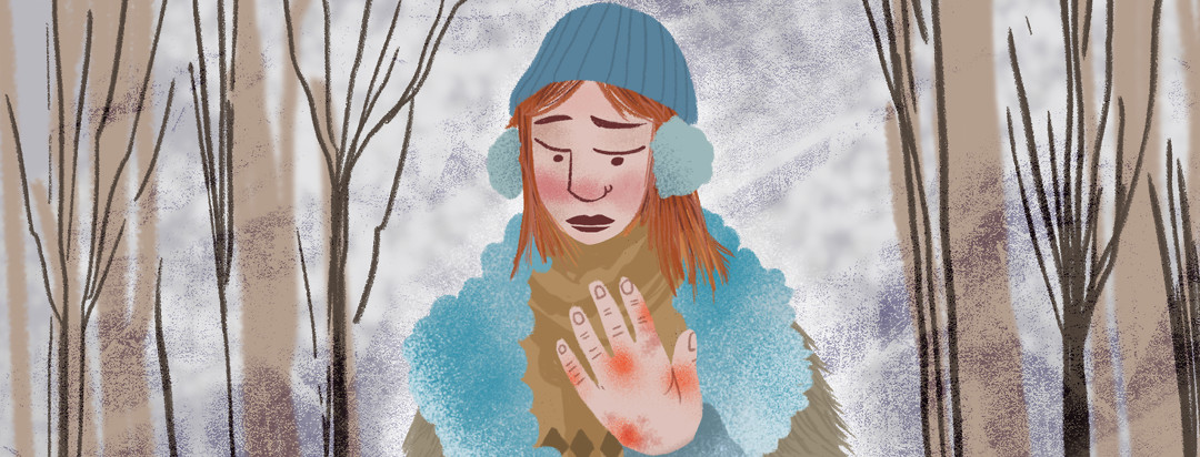 Person in winter gear in the middle of a forest looks at their hand covered in red welts.