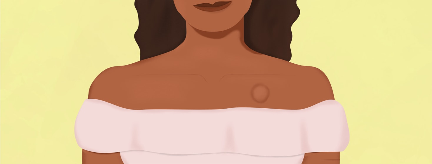 a woman with a port in her chest