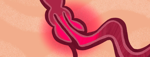 Intussusception Saved My Life: CF Diagnosis Story image