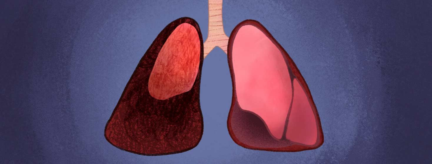 Pair of lungs. Lung to the right is functioning correctly. The other to left has collapsed, Collapsed Lung, pneumothorax